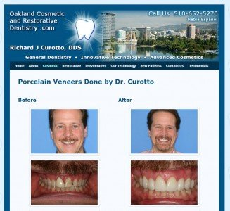 Before/After photos of dental work (photos by office staff)